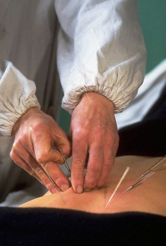 Paciente fazendo acupuntura