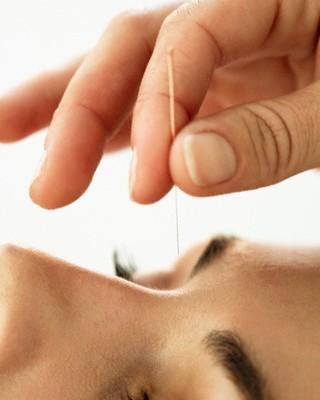 Mulher fazendo acupuntura facial