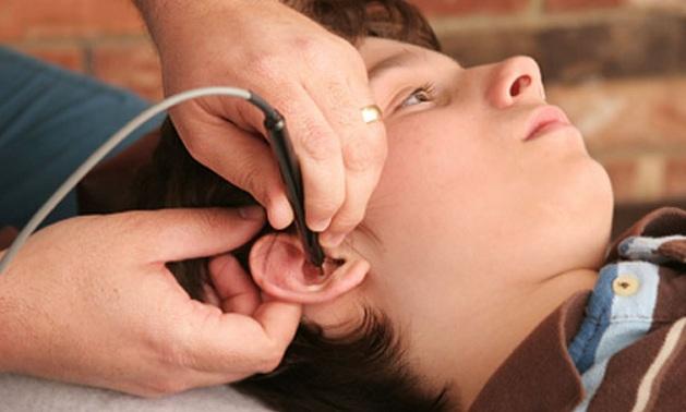 acupuntura-criancas