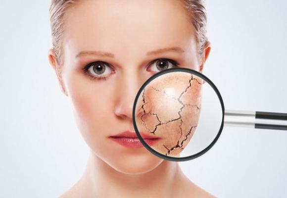 5 dicas para manter a pele hidratada no inverno