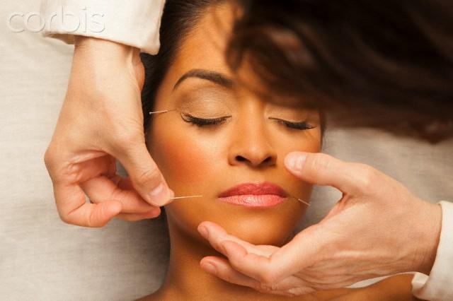 moça fazendo acupuntura para rinite